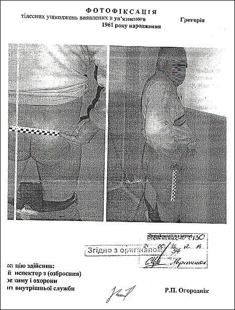 Алімамедов Імран Акпер Огли тортури фото