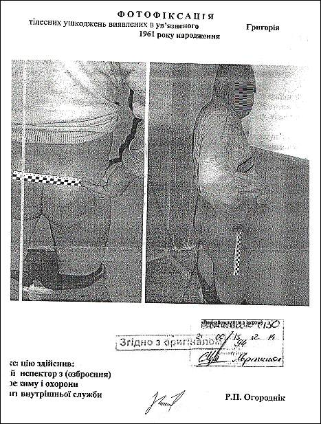 наслідки-тортур-невинної-людини-кибукевич-р-г